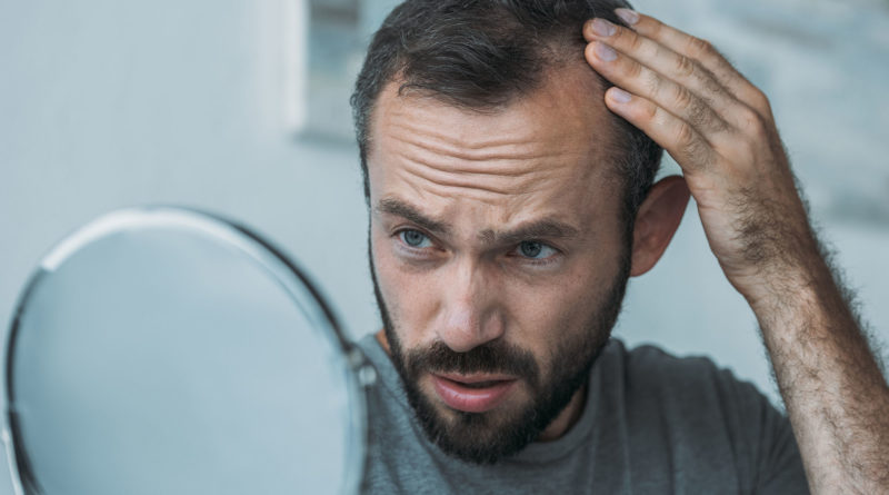 Na czym polega mikropigmentacja skóry głowy?
